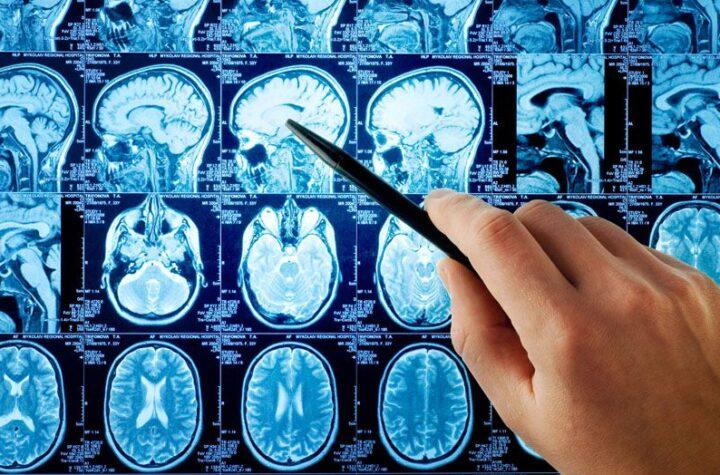 ¿Es permanente la pérdida de memoria que reportan los enfermos por covid-19?